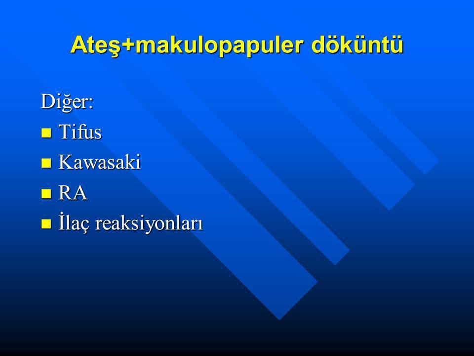 Ateş+makulopapuler döküntü Diğer: Tifus Tifus Kawasaki Kawasaki RA RA İlaç reaksiyonları İlaç reaksiyonları