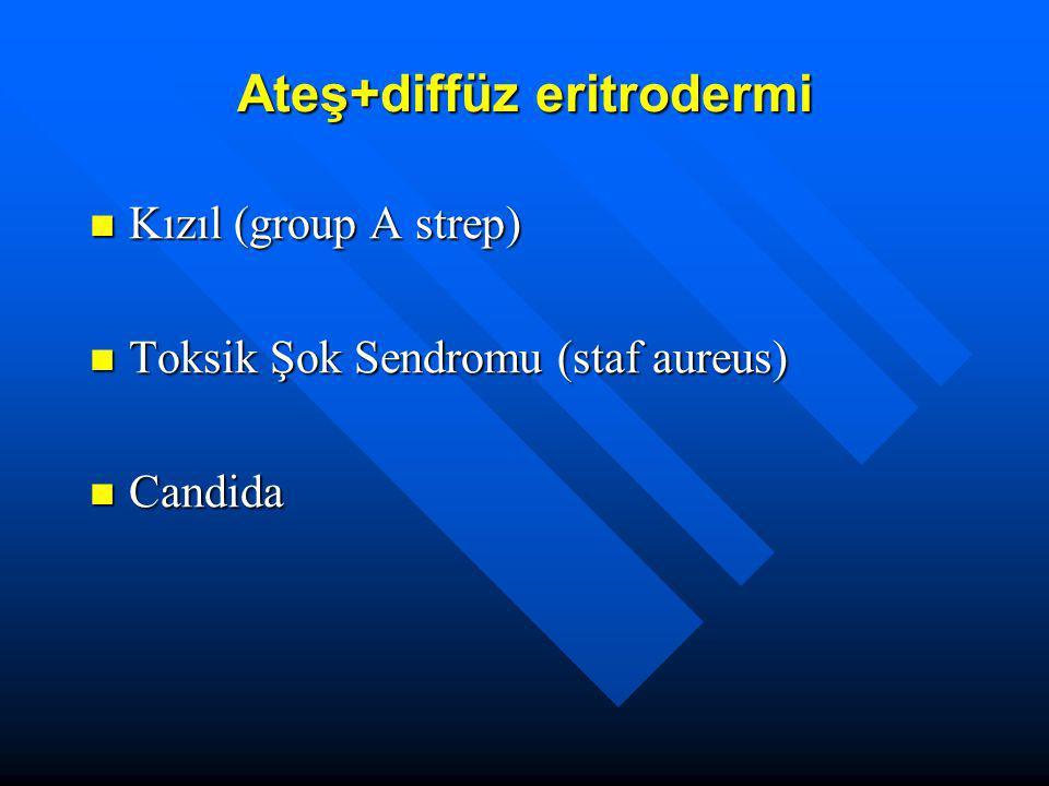 Ateş+diffüz eritrodermi Kızıl (group A strep) Kızıl (group A strep) Toksik Şok Sendromu (staf aureus) Toksik Şok Sendromu (staf aureus) Candida Candid