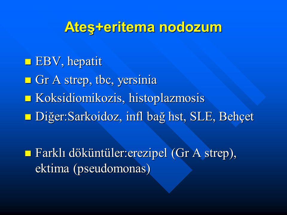 Ateş+eritema nodozum EBV, hepatit EBV, hepatit Gr A strep, tbc, yersinia Gr A strep, tbc, yersinia Koksidiomikozis, histoplazmosis Koksidiomikozis, hi