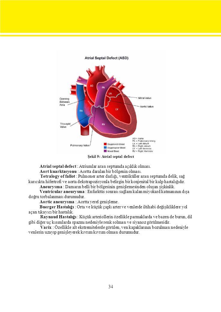 34 Şekil 9: Atrial septal defect Atrial septal defect : Atriumlar arası septumda açıklık olması.