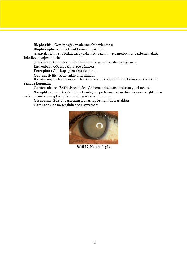 52 Blepharitis : Göz kapağı kenarlarının iltihaplanması.