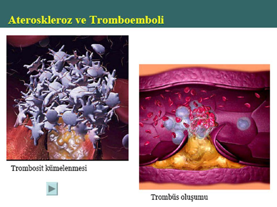 Hemostaz Bozuklukları Kan damarlarında aşırı pıhtı oluşmasına Trombüs denir. Kanda serbestçe dolaşan pıhtılara emboli adı verilir. Hemofili pıhtılaşma