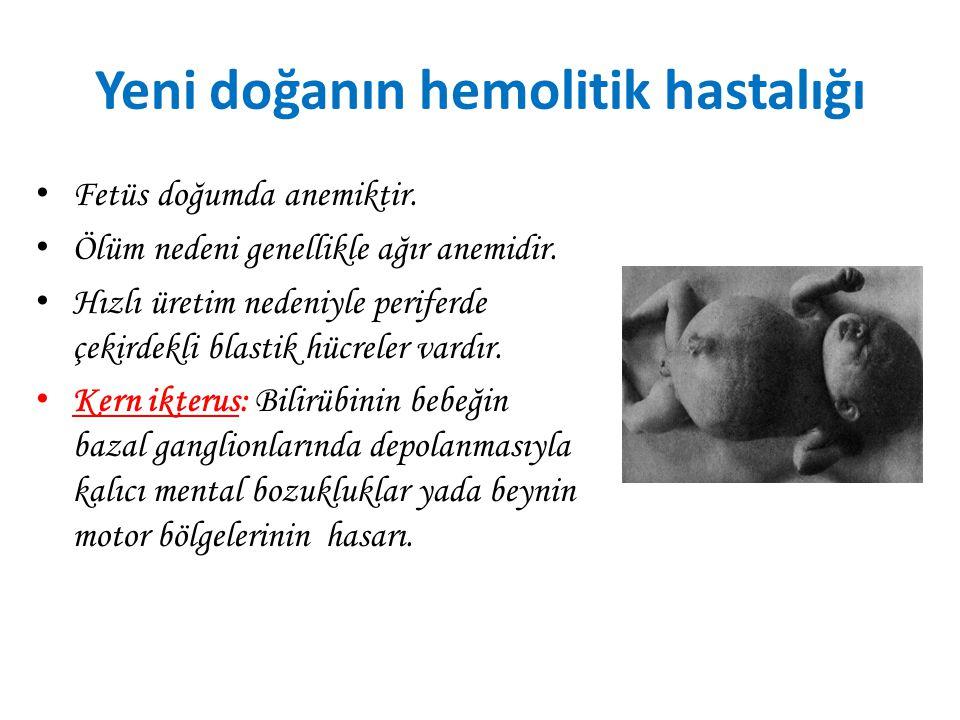 Eritroblastozis fötalis (Yeni doğanın hemolitik hastalığı) Baba Rh + Anne Rh – Bebek Rh + Bebek babasından Rh (+) antijeni alır, anne bebeğin Rh antij