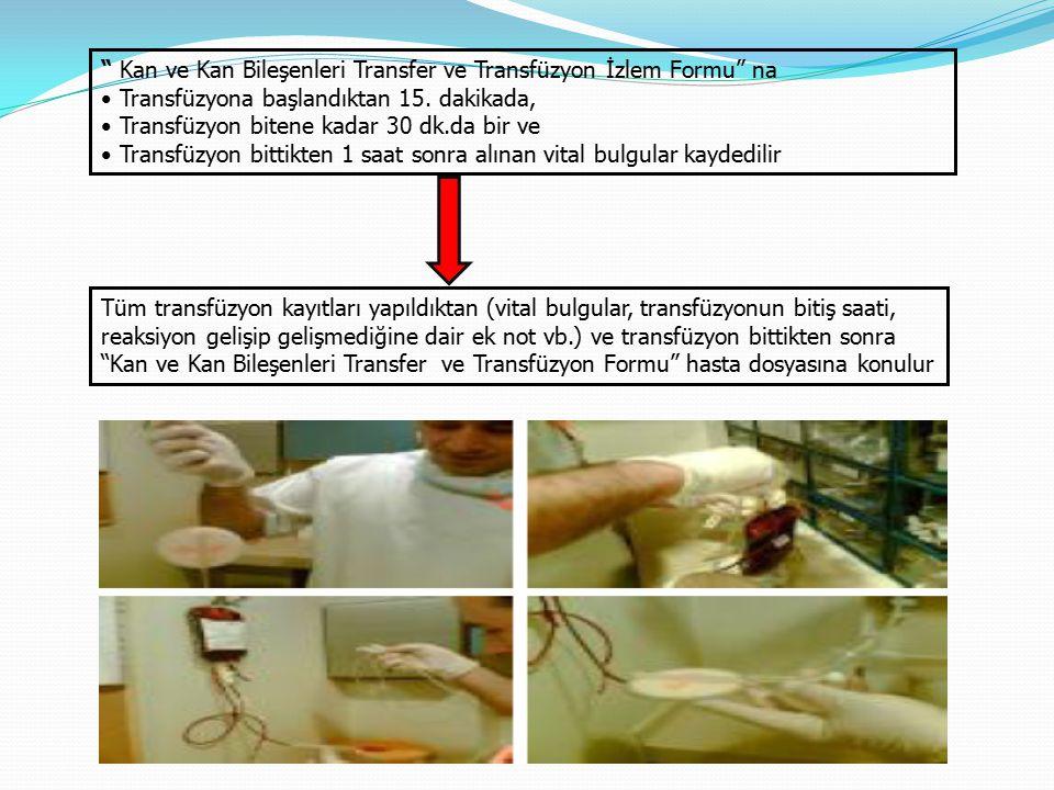 """"""" Kan ve Kan Bileşenleri Transfer ve Transfüzyon İzlem Formu"""" na Transfüzyona başlandıktan 15. dakikada, Transfüzyon bitene kadar 30 dk.da bir ve Tran"""