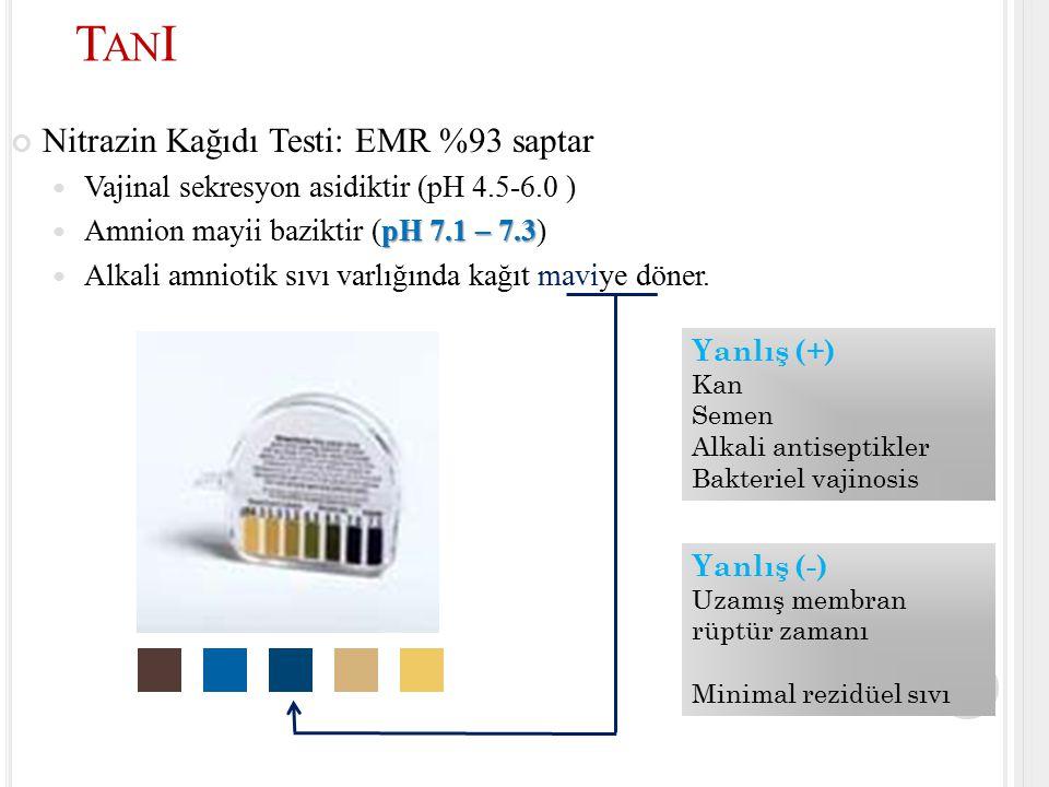 Nitrazin Kağıdı Testi: EMR %93 saptar Vajinal sekresyon asidiktir (pH 4.5-6.0 ) pH 7.1 – 7.3 Amnion mayii baziktir (pH 7.1 – 7.3) Alkali amniotik sıvı