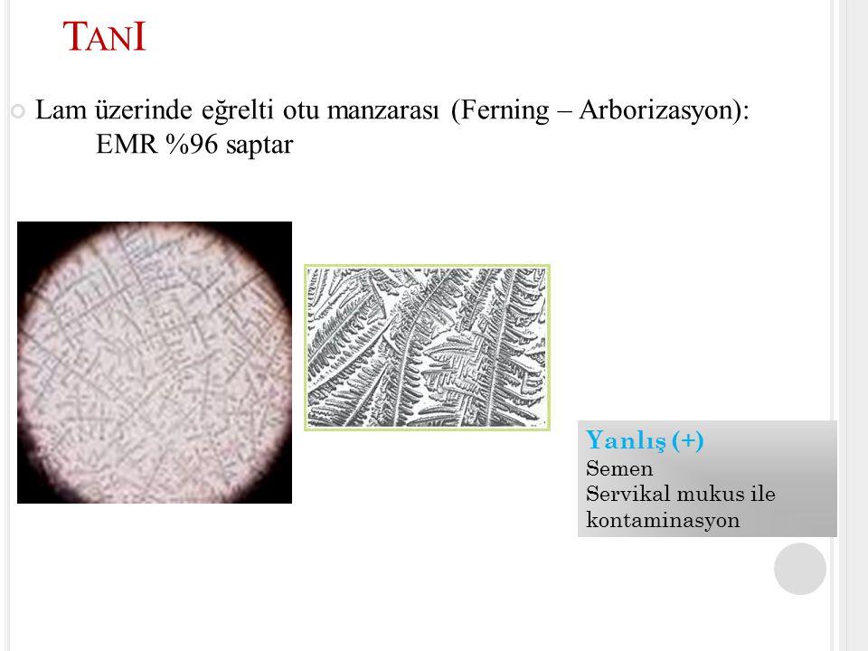 Lam üzerinde eğrelti otu manzarası (Ferning – Arborizasyon): EMR %96 saptar T AN I Yanlış (+) Semen Servikal mukus ile kontaminasyon
