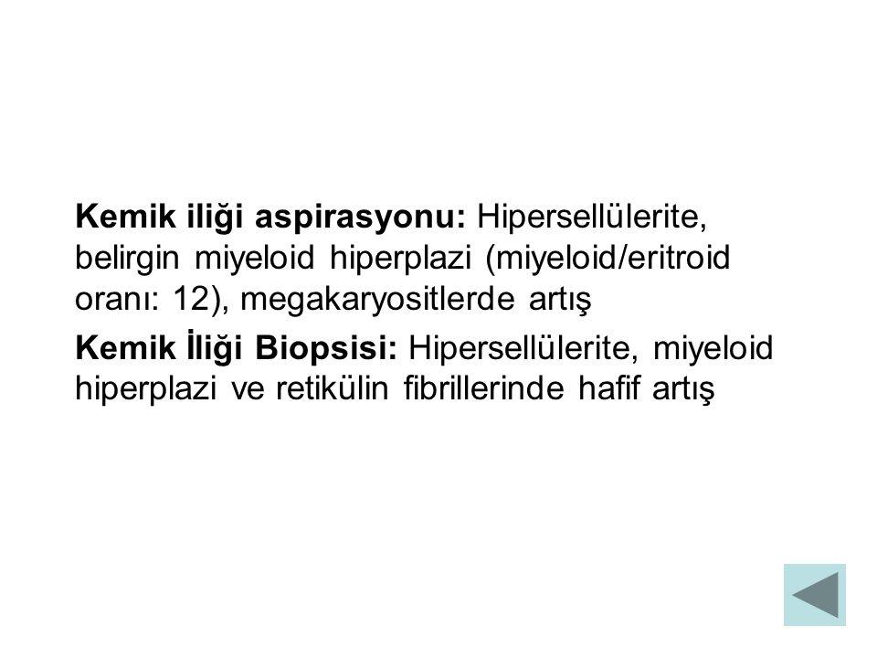 Kemik iliği aspirasyonu: Hipersellülerite, belirgin miyeloid hiperplazi (miyeloid/eritroid oranı: 12), megakaryositlerde artış Kemik İliği Biopsisi: H