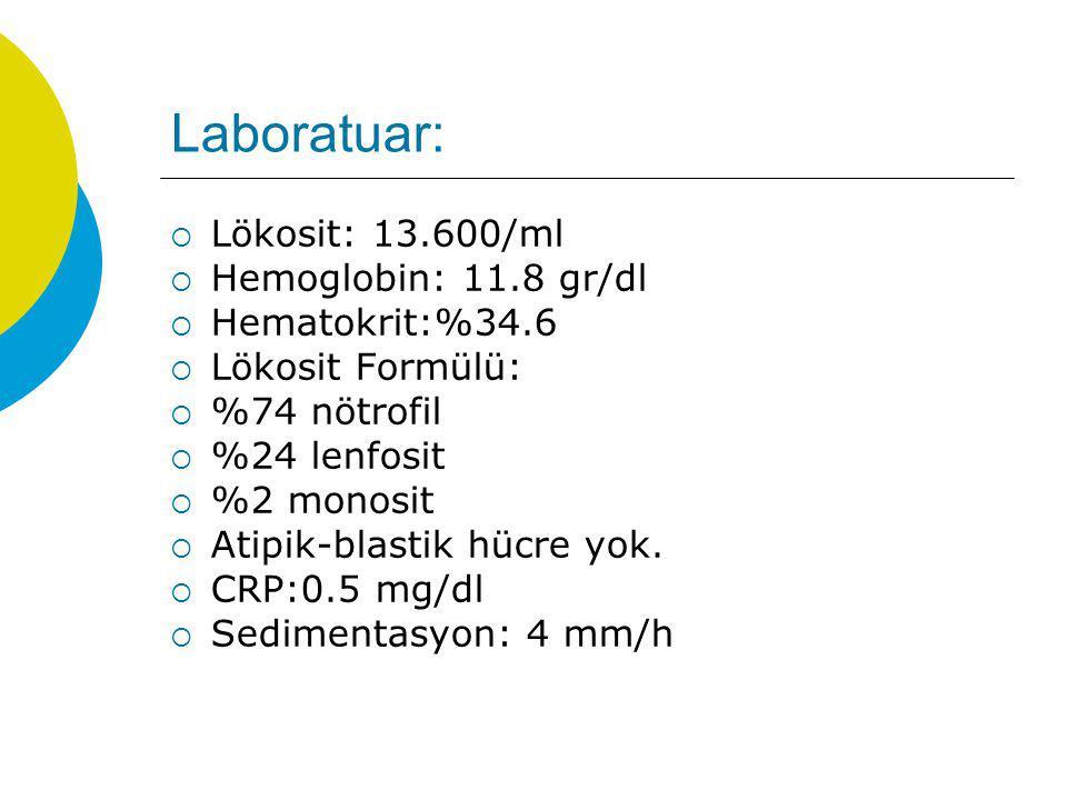 Laboratuar:  Lökosit: 13.600/ml  Hemoglobin: 11.8 gr/dl  Hematokrit:%34.6  Lökosit Formülü:  %74 nötrofil  %24 lenfosit  %2 monosit  Atipik-bl
