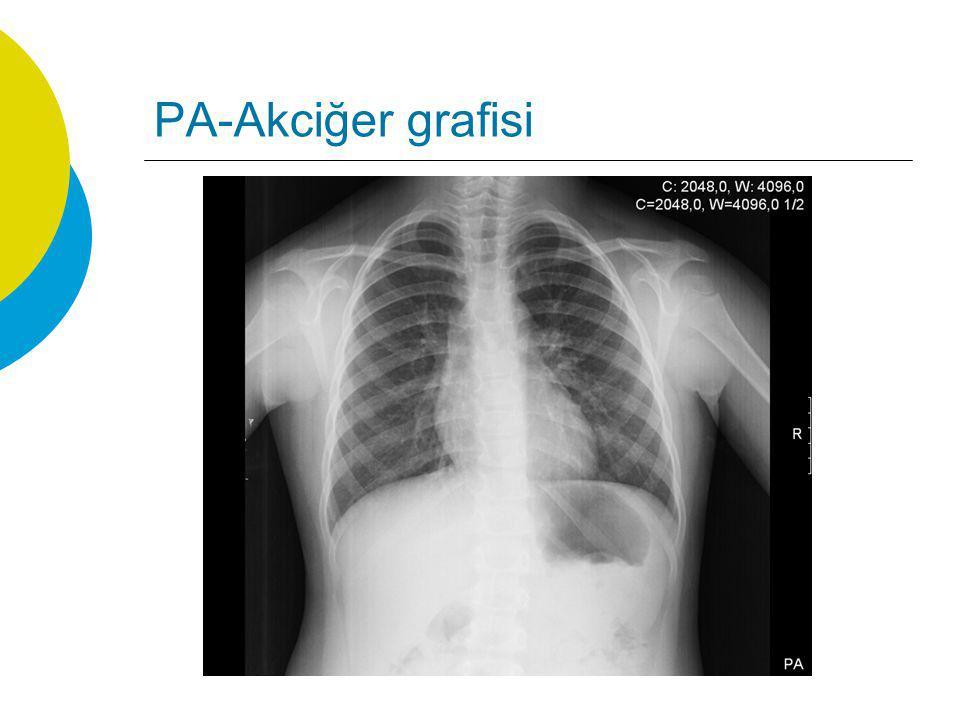 PA-Akciğer grafisi