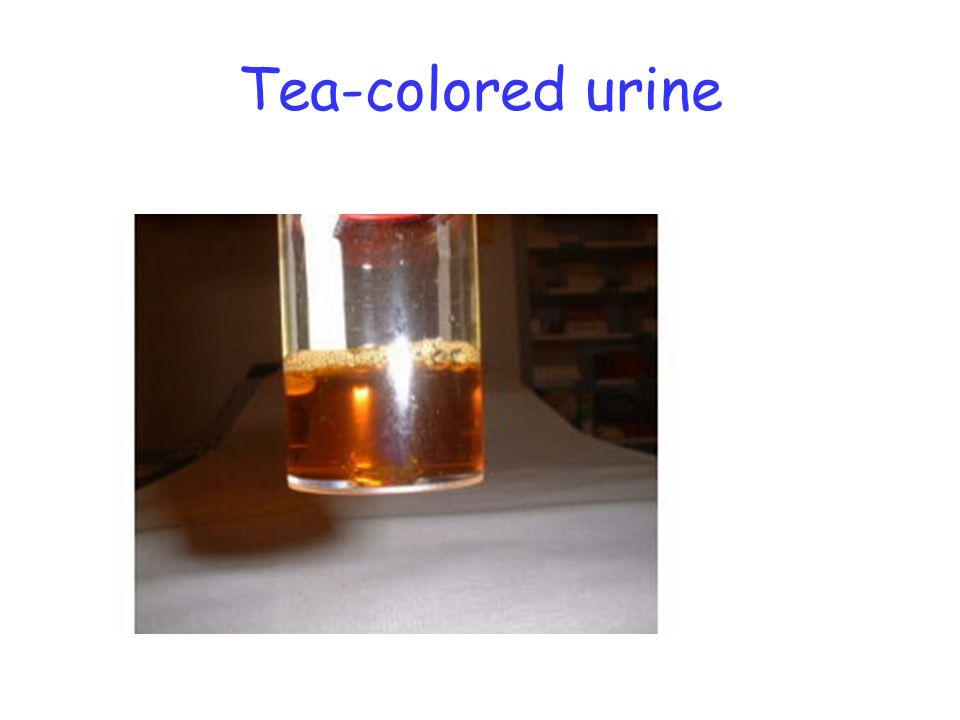 Tea-colored urine