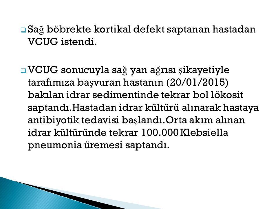  Sa ğ böbrekte kortikal defekt saptanan hastadan VCUG istendi.  VCUG sonucuyla sa ğ yan a ğ rısı ş ikayetiyle tarafımıza ba ş vuran hastanın (20/01/