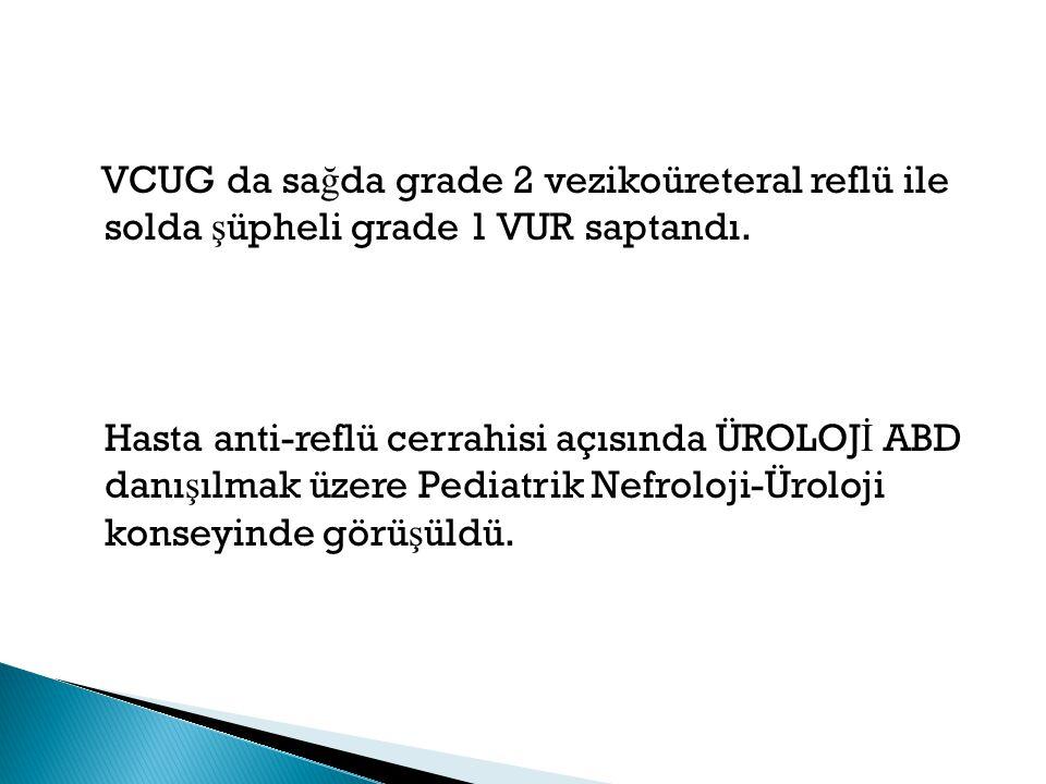 VCUG da sa ğ da grade 2 vezikoüreteral reflü ile solda ş üpheli grade 1 VUR saptandı. Hasta anti-reflü cerrahisi açısında ÜROLOJ İ ABD danı ş ılmak üz