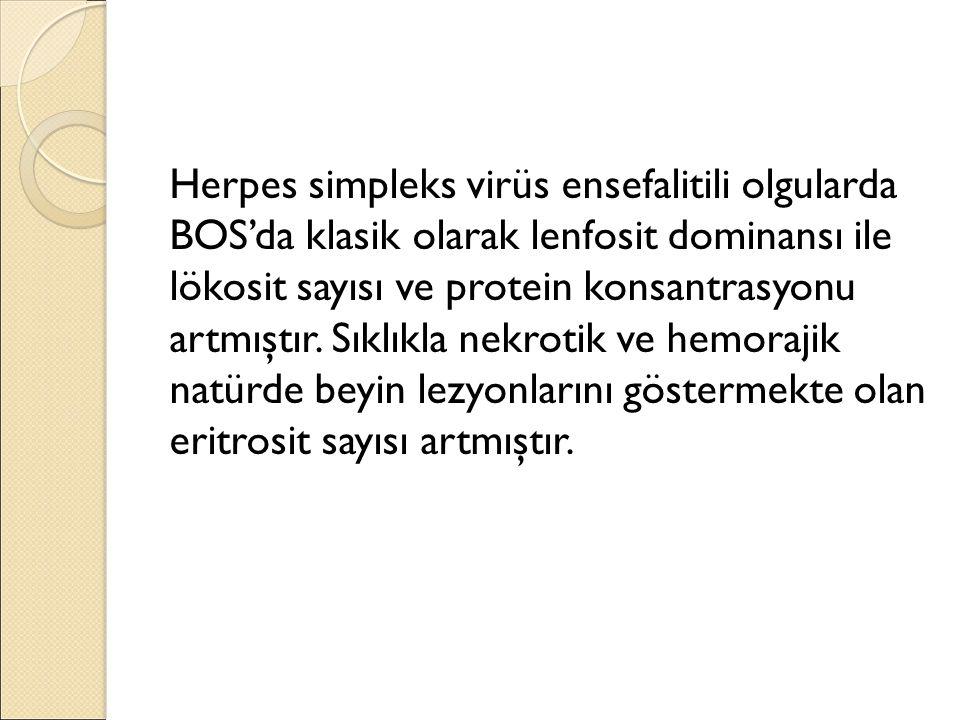 Herpes simpleks virüs ensefalitili olgularda BOS'da klasik olarak lenfosit dominansı ile lökosit sayısı ve protein konsantrasyonu artmıştır.