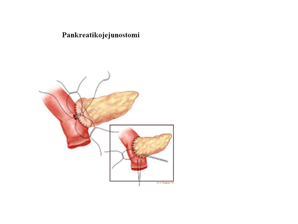 Pankreatikojejunostomi