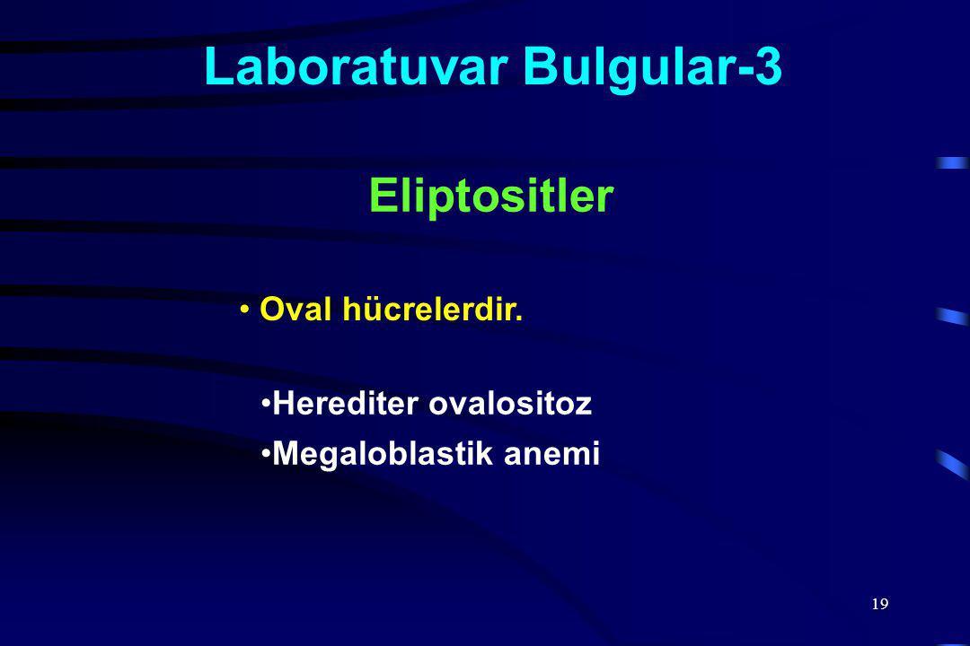 19 Laboratuvar Bulgular-3 Oval hücrelerdir. Eliptositler Herediter ovalositoz Megaloblastik anemi