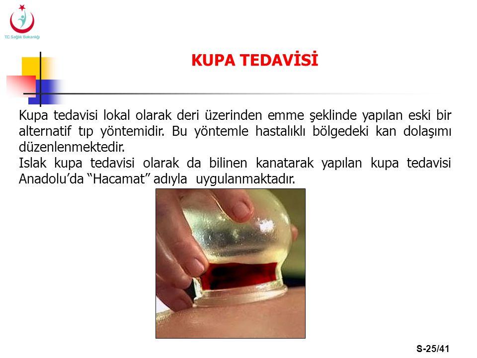 S-25/41 KUPA TEDAVİSİ Kupa tedavisi lokal olarak deri üzerinden emme şeklinde yapılan eski bir alternatif tıp yöntemidir. Bu yöntemle hastalıklı bölge