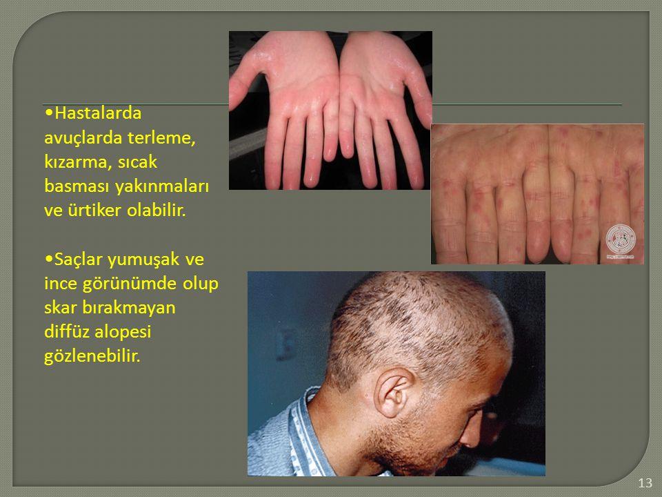 13 Hastalarda avuçlarda terleme, kızarma, sıcak basması yakınmaları ve ürtiker olabilir. Saçlar yumuşak ve ince görünümde olup skar bırakmayan diffüz