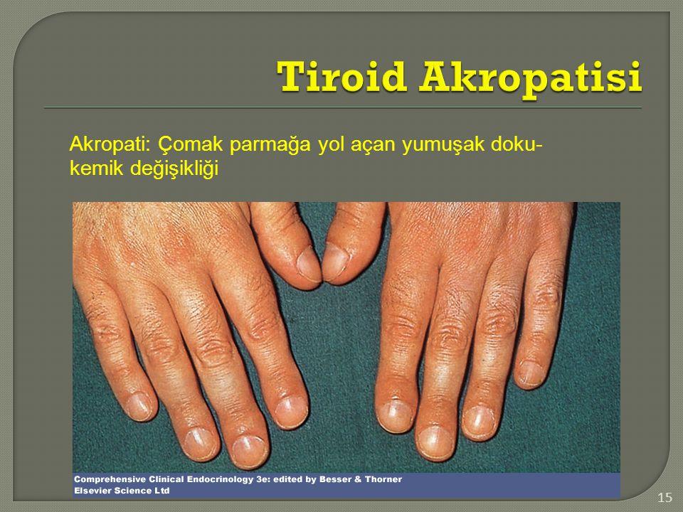 15 Akropati: Çomak parmağa yol açan yumuşak doku- kemik değişikliği