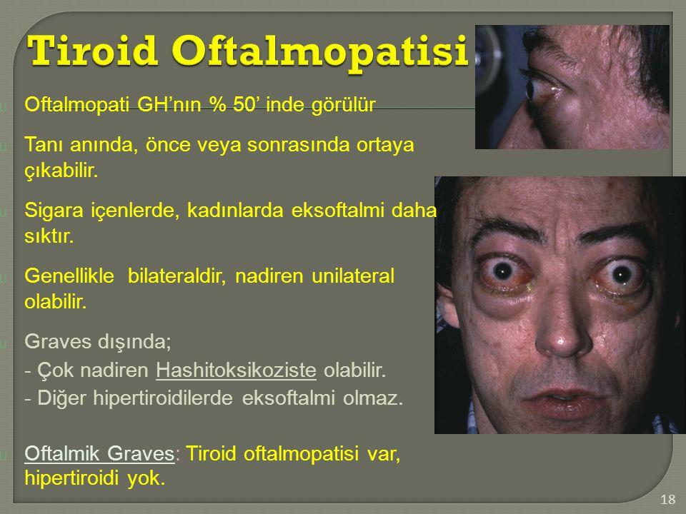 18 u Oftalmopati GH'nın % 50' inde görülür u Tanı anında, önce veya sonrasında ortaya çıkabilir. u Sigara içenlerde, kadınlarda eksoftalmi daha sıktır