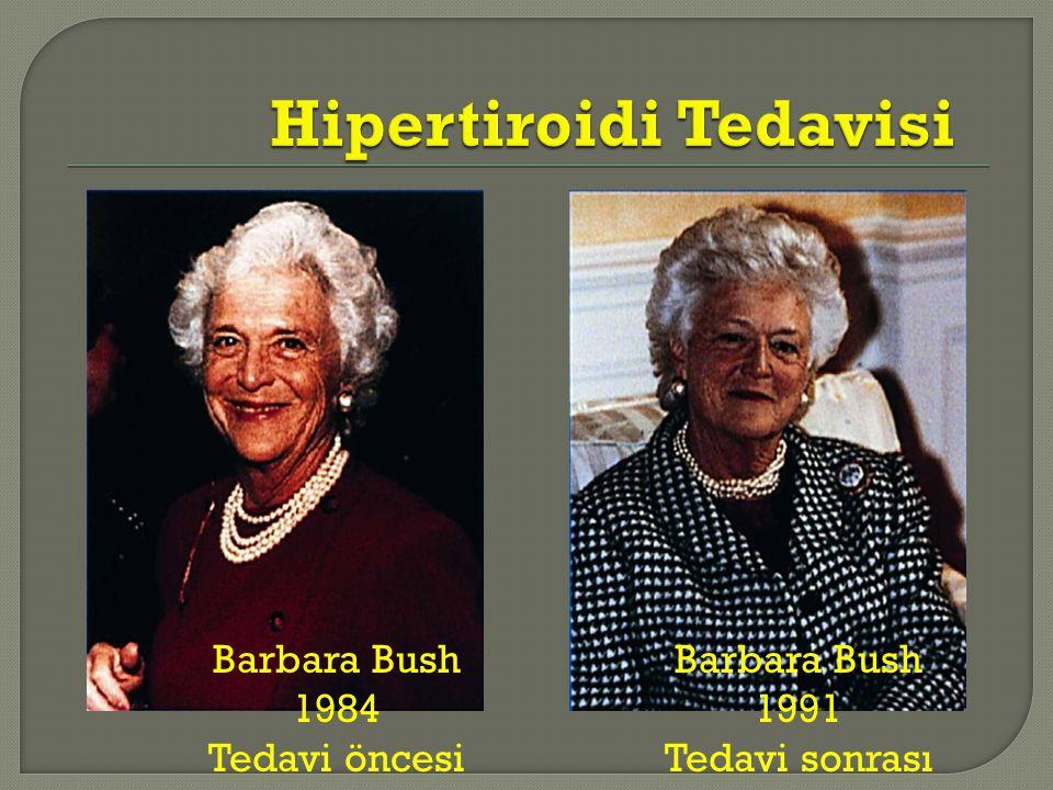 Barbara Bush 1984 Tedavi öncesi Barbara Bush 1991 Tedavi sonrası