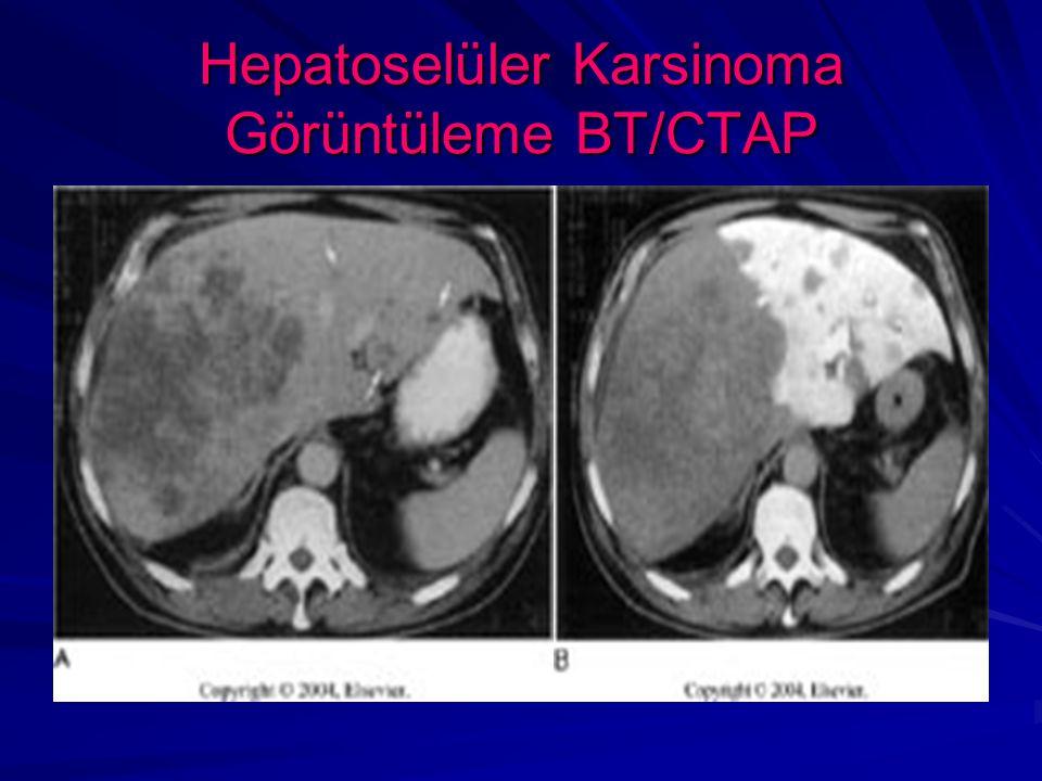 Hepatoselüler Karsinoma Görüntüleme BT/CTAP