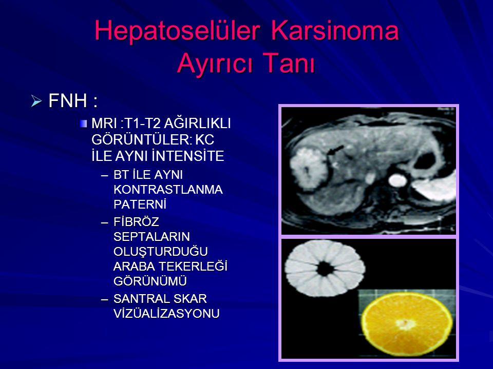 Hepatoselüler Karsinoma Ayırıcı Tanı  FNH : MRI : MRI :T1-T2 AĞIRLIKLI GÖRÜNTÜLER: KC İLE AYNI İNTENSİTE – –BT İLE AYNI KONTRASTLANMA PATERNİ –FİBRÖZ SEPTALARIN OLUŞTURDUĞU ARABA TEKERLEĞİ GÖRÜNÜMÜ –SANTRAL SKAR VİZÜALİZASYONU