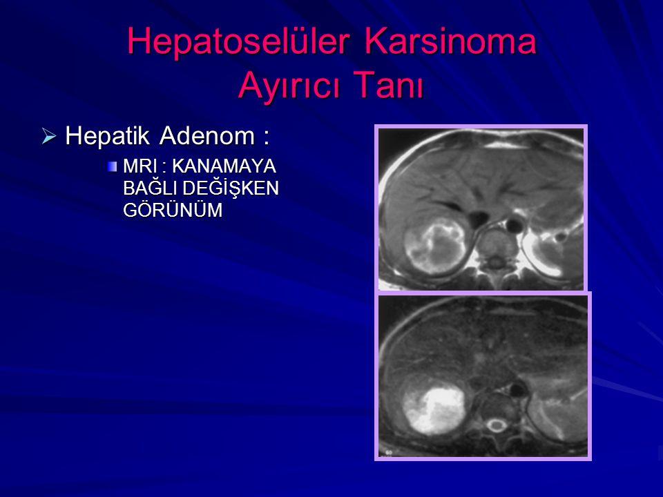 Hepatoselüler Karsinoma Ayırıcı Tanı  Hepatik Adenom : MRI : KANAMAYA BAĞLI DEĞİŞKEN GÖRÜNÜM
