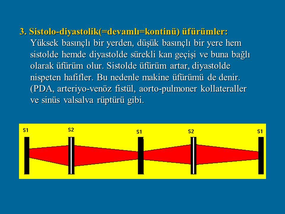 3. Sistolo-diyastolik(=devamlı=kontinü) üfürümler: Yüksek basınçlı bir yerden, düşük basınçlı bir yere hem sistolde hemde diyastolde sürekli kan geçiş