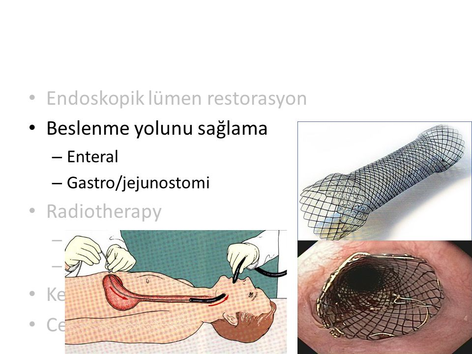 Endoskopik lümen restorasyon Beslenme yolunu sağlama – Enteral – Gastro/jejunostomi Radiotherapy – EBRT – Brakiterapi Kemoterapi Cerrahi