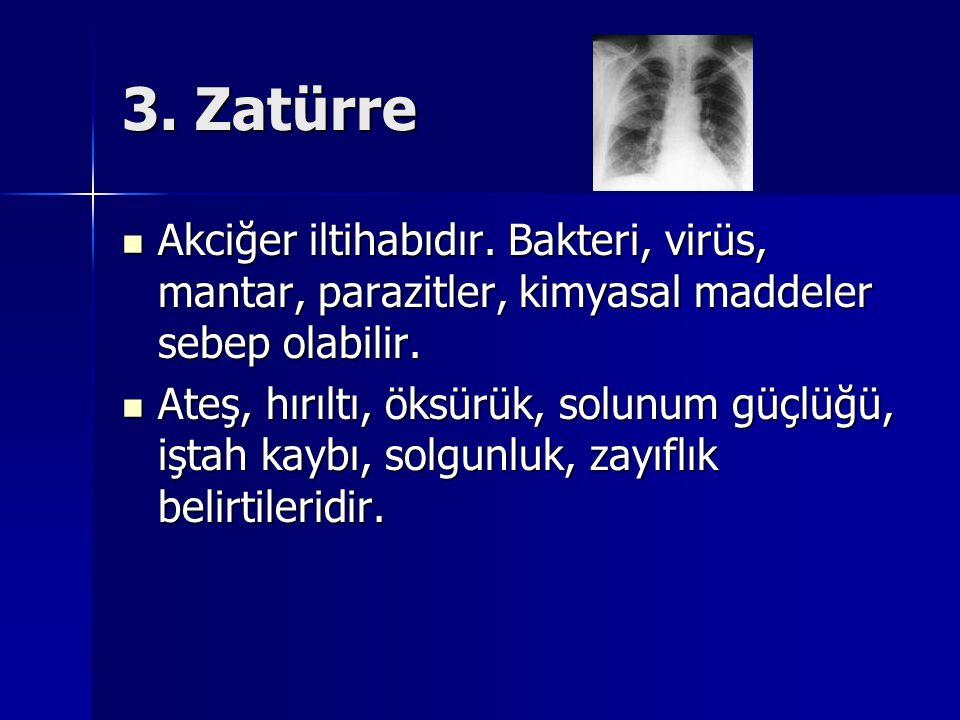 3. Zatürre Akciğer iltihabıdır. Bakteri, virüs, mantar, parazitler, kimyasal maddeler sebep olabilir. Akciğer iltihabıdır. Bakteri, virüs, mantar, par