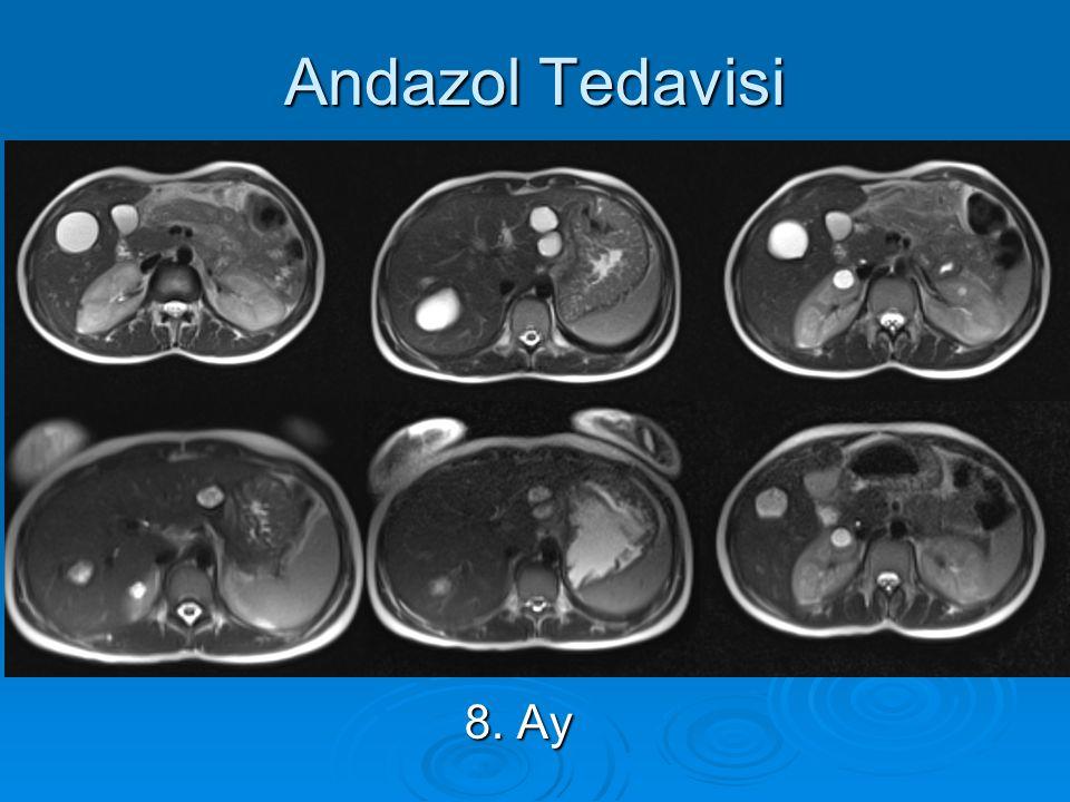 Andazol Tedavisi 15YK 8. Ay