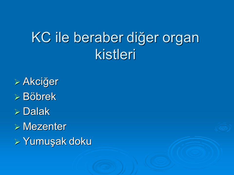 KC ile beraber diğer organ kistleri  Akciğer  Böbrek  Dalak  Mezenter  Yumuşak doku