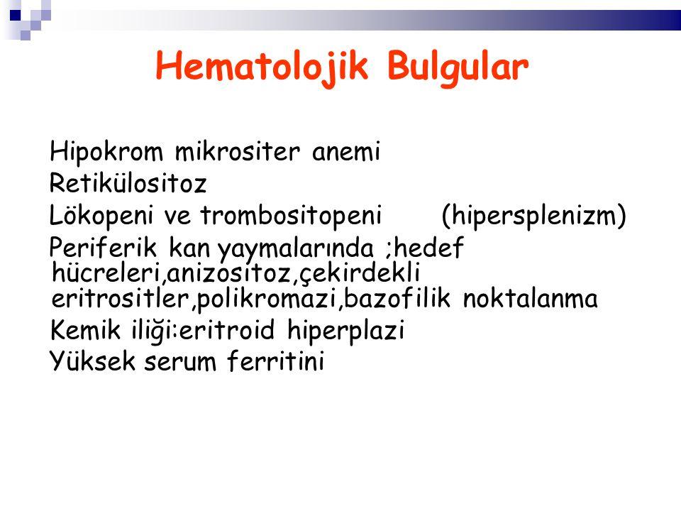 Hematolojik Bulgular Hipokrom mikrositer anemi Retikülositoz Lökopeni ve trombositopeni (hipersplenizm) Periferik kan yaymalarında ;hedef hücreleri,anizositoz,çekirdekli eritrositler,polikromazi,bazofilik noktalanma Kemik iliği:eritroid hiperplazi Yüksek serum ferritini