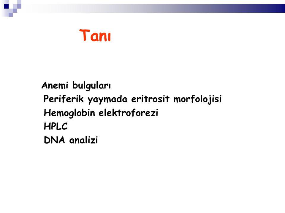 Tanı Anemi bulguları Periferik yaymada eritrosit morfolojisi Hemoglobin elektroforezi HPLC DNA analizi