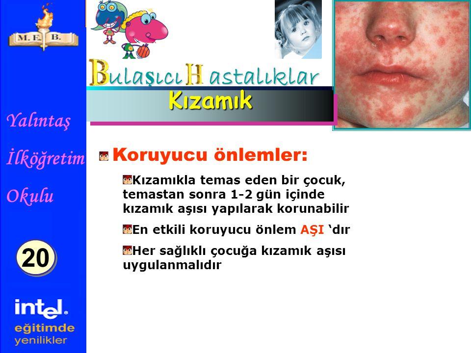 Yalıntaş İlköğretim Okulu ula ş ıcı astalıklar KızamıkKızamık Koruyucu önlemler: Kızamıkla temas eden bir çocuk, temastan sonra 1-2 gün içinde kızamık