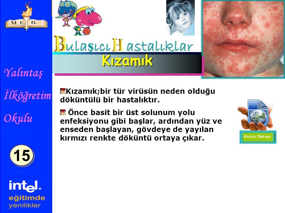 Yalıntaş İlköğretim Okulu ula ş ıcı astalıklar KızamıkKızamık Kızamık;bir tür virüsün neden olduğu döküntülü bir hastalıktır.