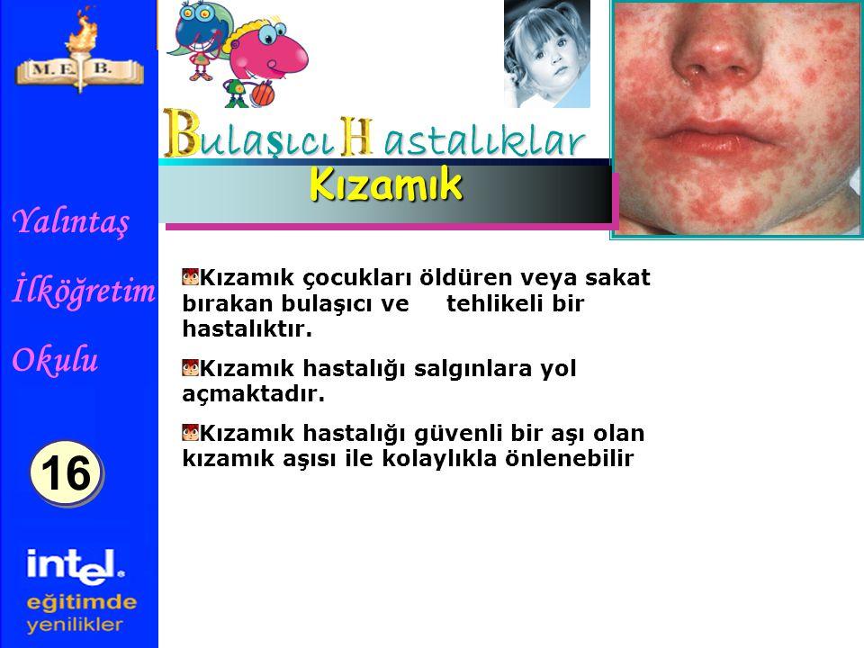 Yalıntaş İlköğretim Okulu ula ş ıcı astalıklar KızamıkKızamık Kızamık çocukları öldüren veya sakat bırakan bulaşıcı ve tehlikeli bir hastalıktır.