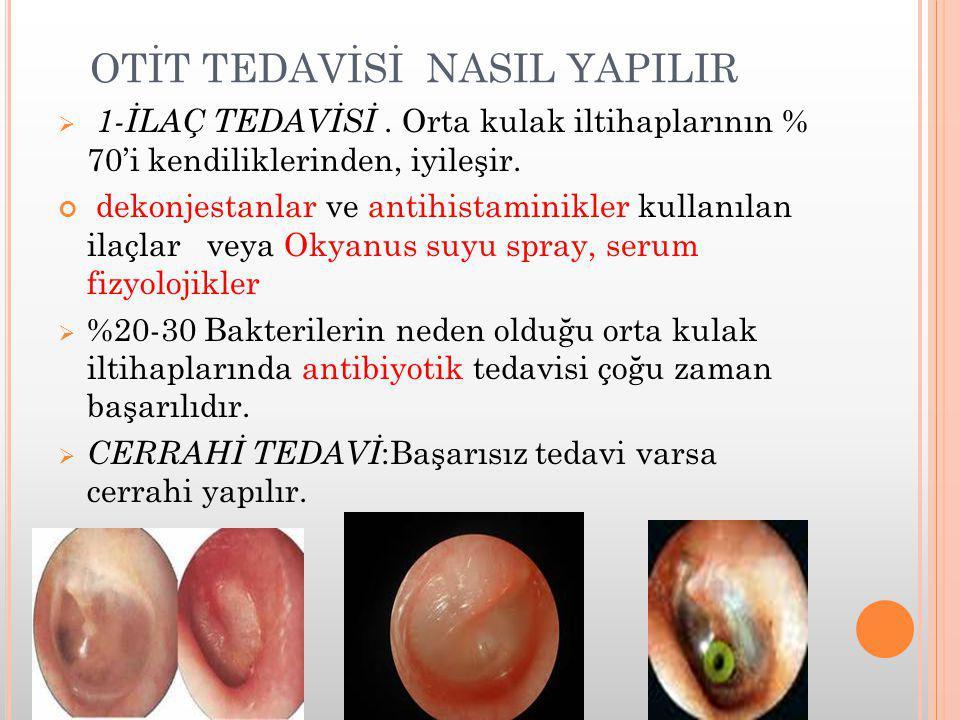 OTİT TEDAVİSİ NASIL YAPILIR  1-İLAÇ TEDAVİSİ. Orta kulak iltihaplarının % 70'i kendiliklerinden, iyileşir. dekonjestanlar ve antihistaminikler kullan