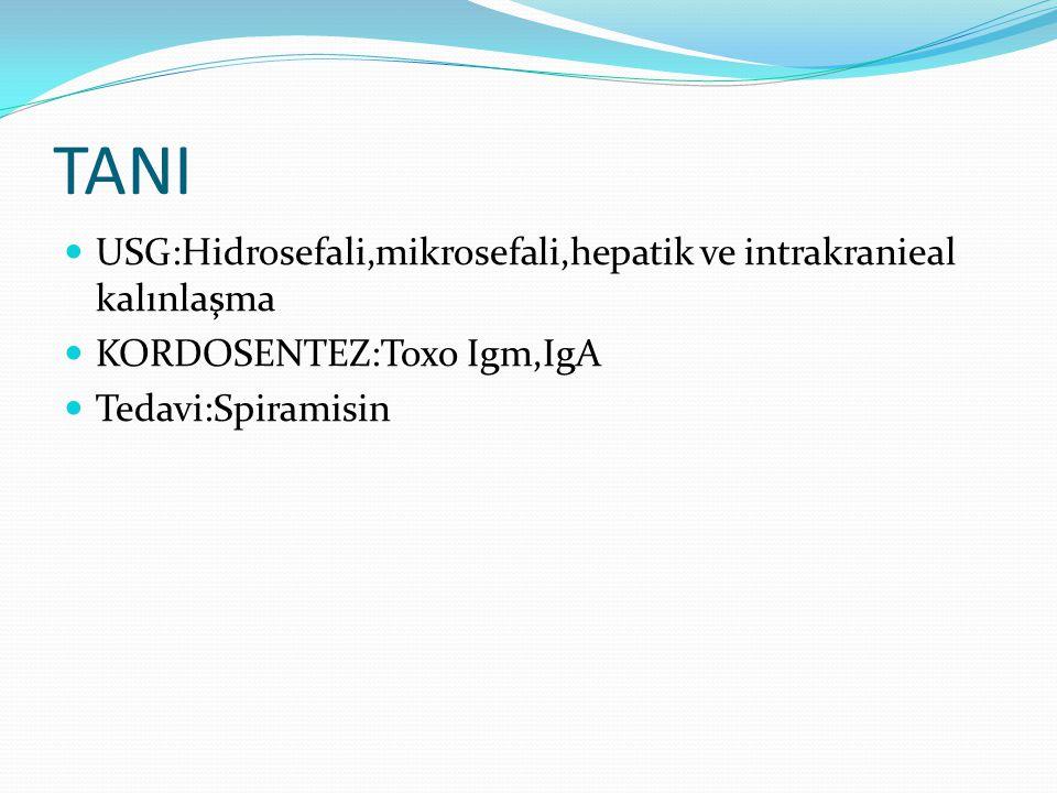 TANI USG:Hidrosefali,mikrosefali,hepatik ve intrakranieal kalınlaşma KORDOSENTEZ:Toxo Igm,IgA Tedavi:Spiramisin