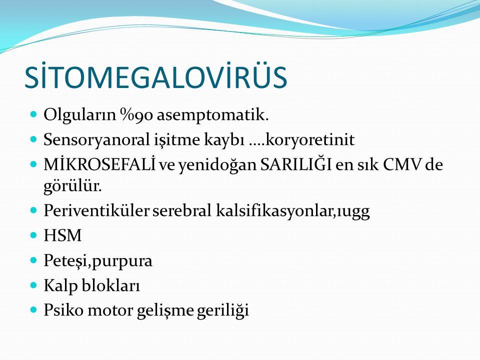 SİTOMEGALOVİRÜS Olguların %90 asemptomatik.