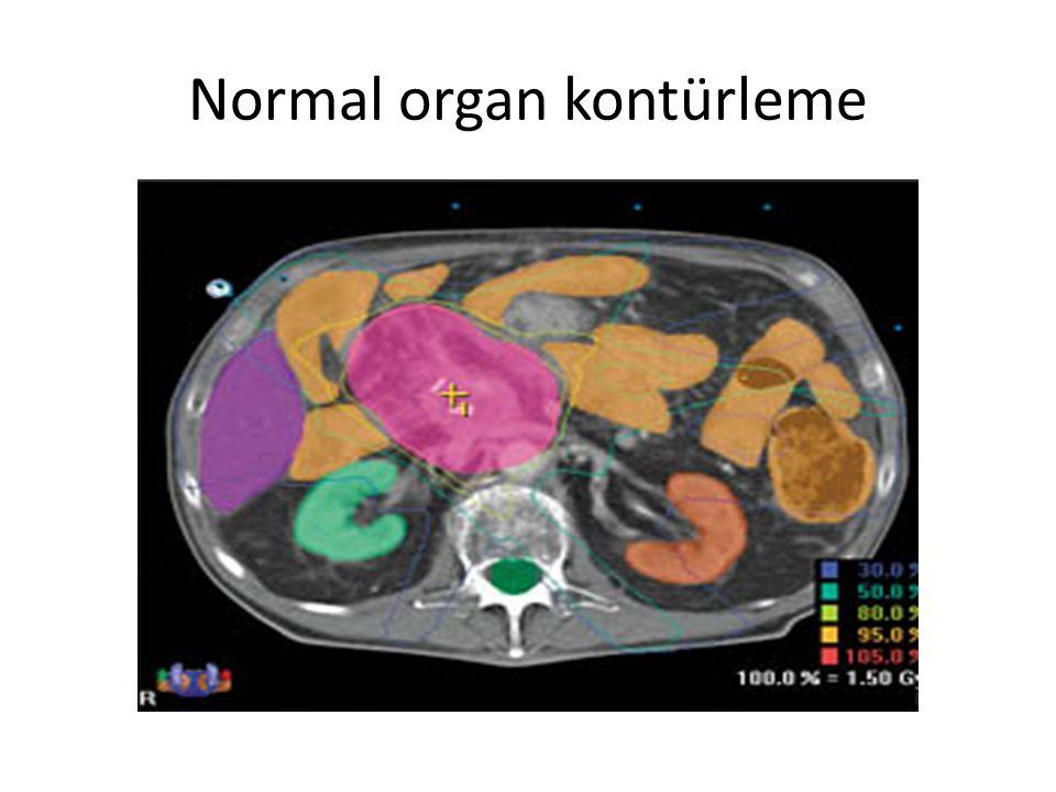 Normal organ kontürleme