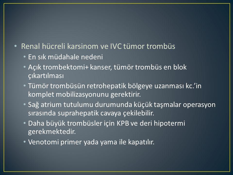Renal hücreli karsinom ve IVC tümor trombüs En sık müdahale nedeni Açık trombektomi+ kanser, tümör trombüs en blok çıkartılması Tümör trombüsün retrohepatik bölgeye uzanması kc.'in komplet mobilizasyonunu gerektirir.