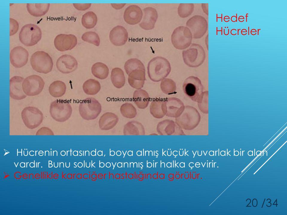 20 /34 Hedef Hücreler  Hücrenin ortasında, boya almış küçük yuvarlak bir alan vardır. Bunu soluk boyanmış bir halka çevirir.  Genellikle karaciğer h