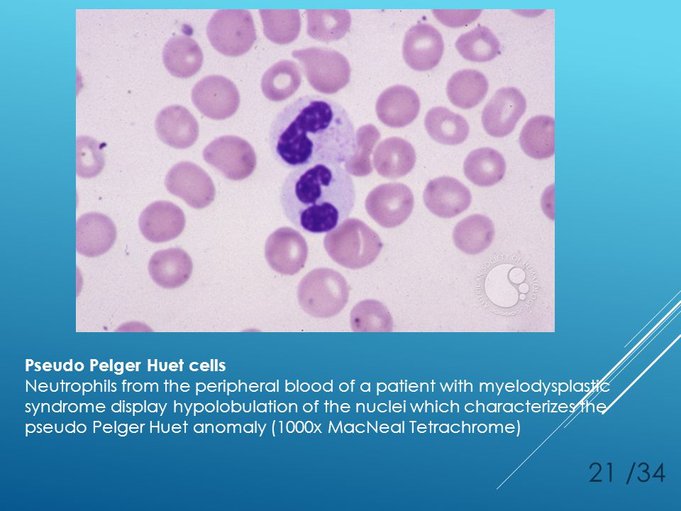 21 /34 Pseudo Pelger Huet cells Neutrophils from the peripheral blood of a patient with myelodysplastic syndrome display hypolobulation of the nuclei