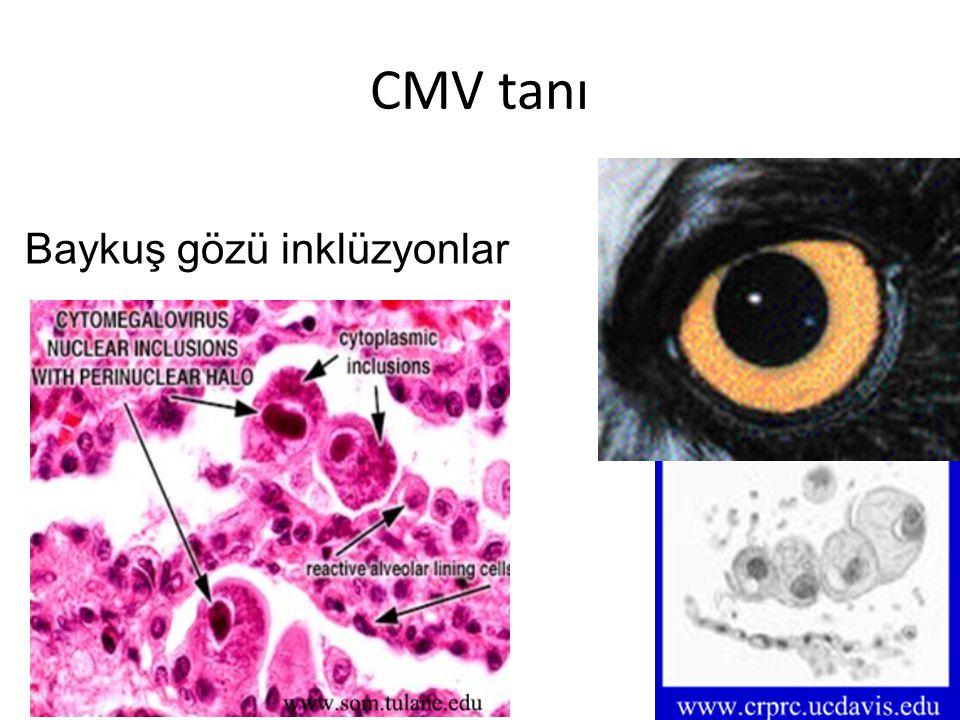 CMV tanı Baykuş gözü inklüzyonlar
