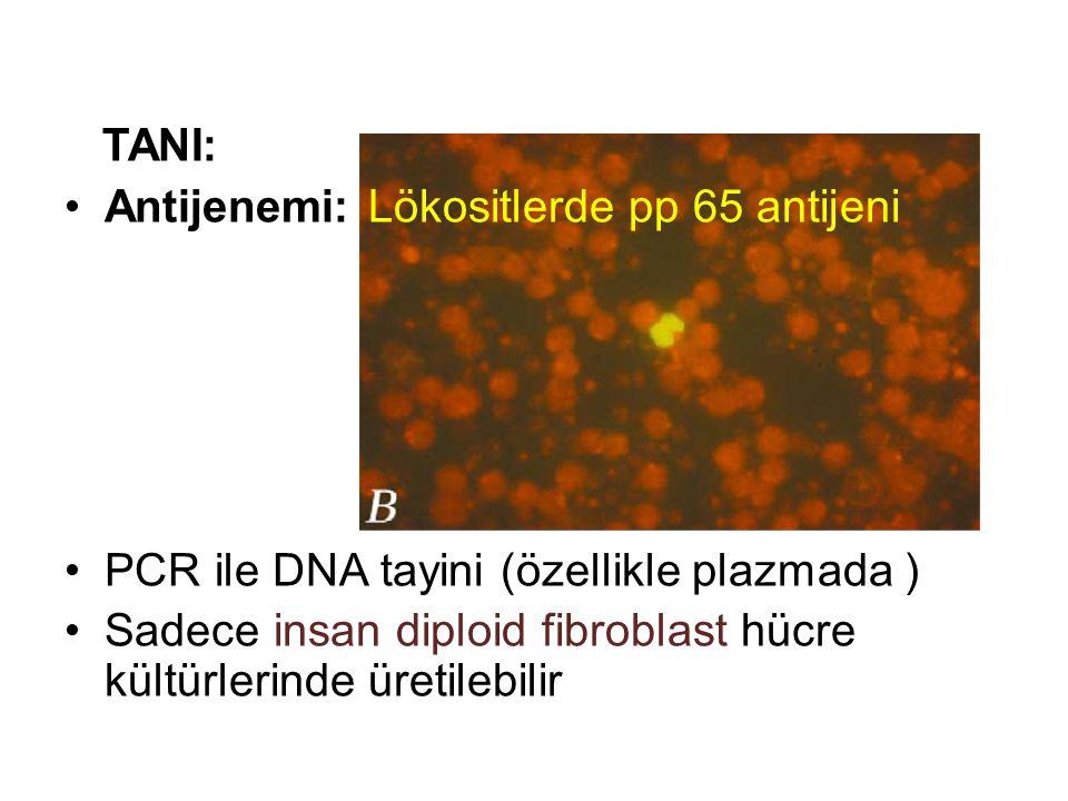 TANI: Antijenemi: Lökositlerde pp 65 antijeni PCR ile DNA tayini (özellikle plazmada ) Sadece insan diploid fibroblast hücre kültürlerinde üretilebilir