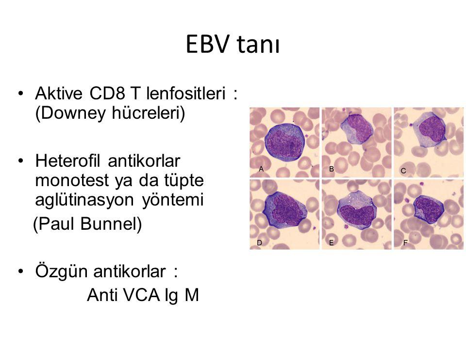 EBV tanı Aktive CD8 T lenfositleri : (Downey hücreleri) Heterofil antikorlar monotest ya da tüpte aglütinasyon yöntemi (Paul Bunnel) Özgün antikorlar : Anti VCA Ig M