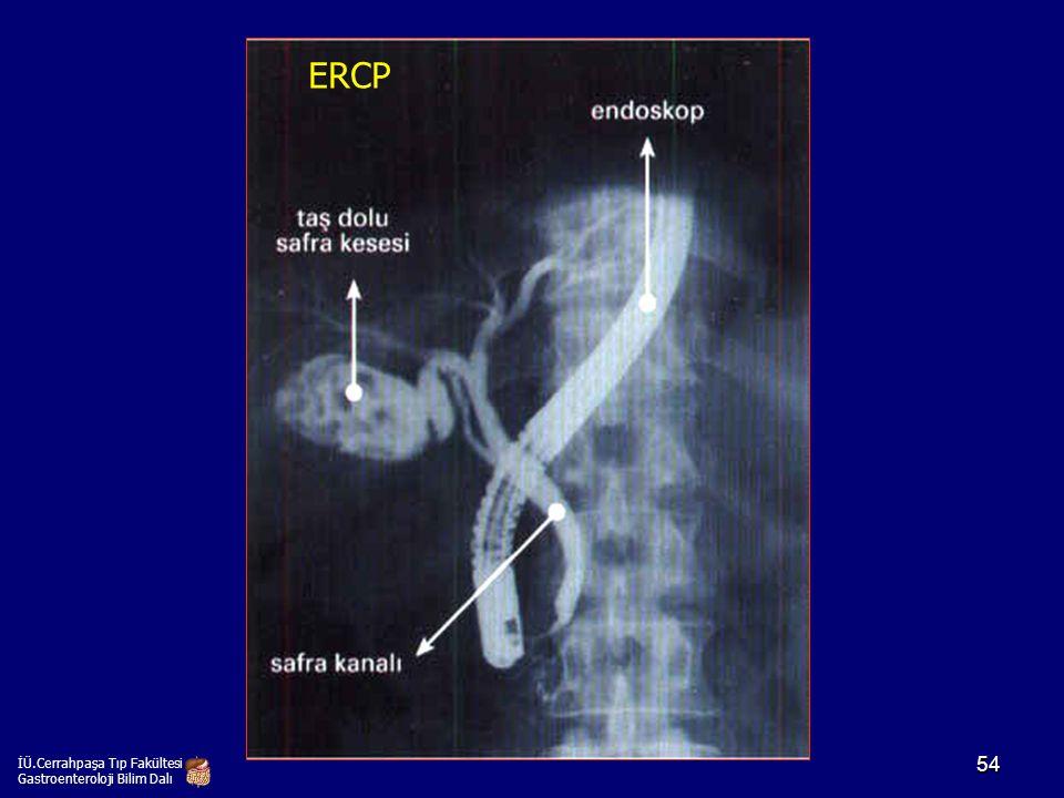 İÜ.Cerrahpaşa Tıp Fakültesi Gastroenteroloji Bilim Dalı ERCP 54