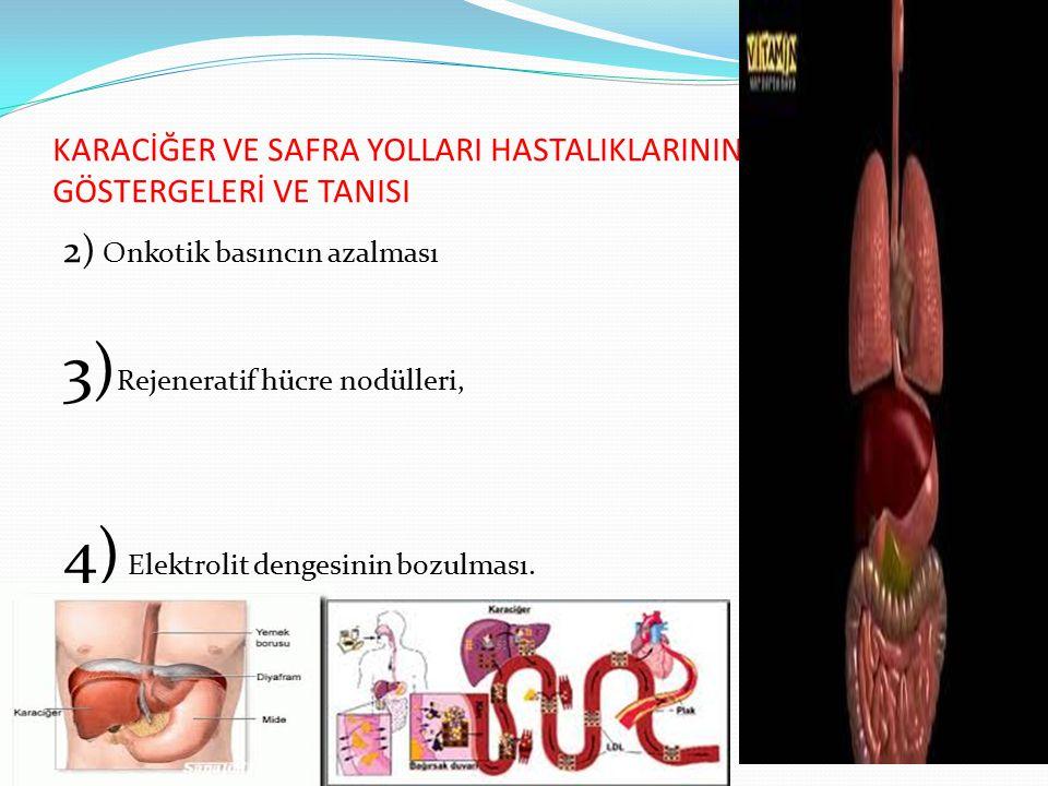 KARACİĞER VE SAFRA YOLLARI HASTALIKLARININ GÖSTERGELERİ VE TANISI 2) Onkotik basıncın azalması 3) Rejeneratif hücre nodülleri, 4) Elektrolit dengesini