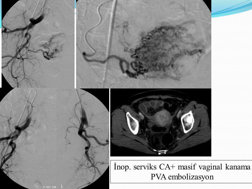 İnop. serviks CA+ masif vaginal kanama PVA embolizasyon